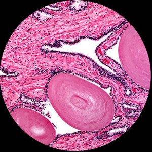 prostateglandolder-microscope 16